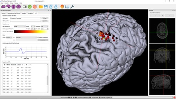 TMS motor mapping in stroke